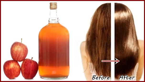 صوره فوائد خل التفاح للشعر , وصفة سريعة للتخلص من قشرة الشعر باستخدام خل التفاح
