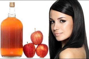 صور فوائد خل التفاح للشعر , وصفة سريعة للتخلص من قشرة الشعر باستخدام خل التفاح