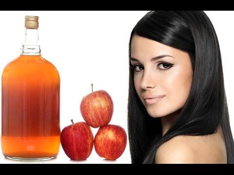 صورة فوائد خل التفاح للشعر , وصفة سريعة للتخلص من قشرة الشعر باستخدام خل التفاح