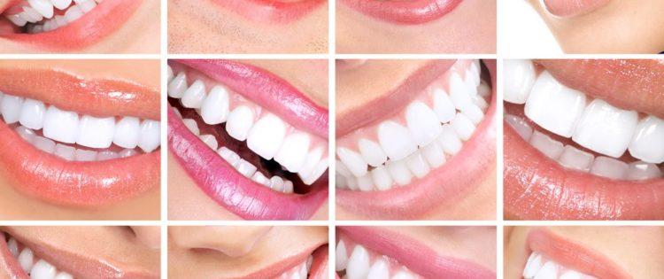 صور اضرار تبييض الاسنان , خطورة تبيض الاسنان بقلم التبيض او الليزر