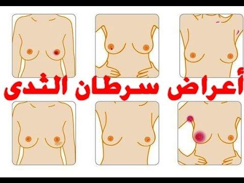 صورة اعراض سرطان الثدي , مرض سرطان الثدي