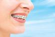 صورة اضرار جسر الاسنان , اضرار التركيبات الثابتة للاسنان