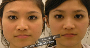 صورة تنحيف الوجه , طريقه الامثل لنتحيف الوجه