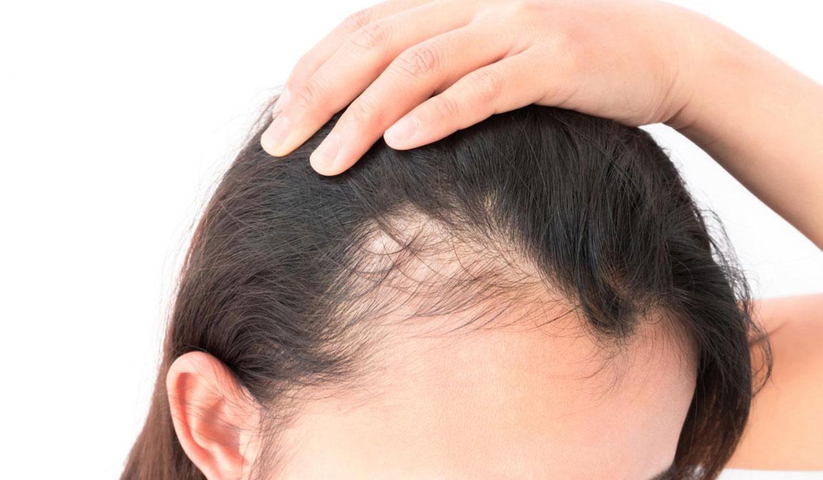 بالصور علاج تساقط الشعر , طريقة لمنع تساقط الشعر 449 1