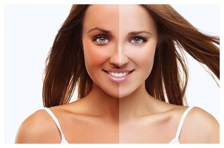 بالصور اسمرار البشرة من الشمس , علاج سواد الشمس من الوجه 6424 1