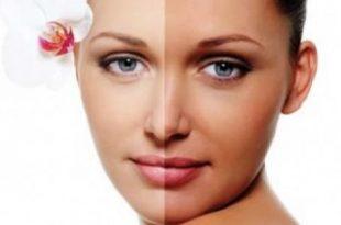 بالصور اسمرار البشرة من الشمس , علاج سواد الشمس من الوجه 6424 3 310x205