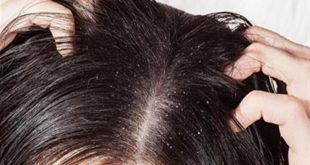 صورة القشرة في الشعر , قشور الراس