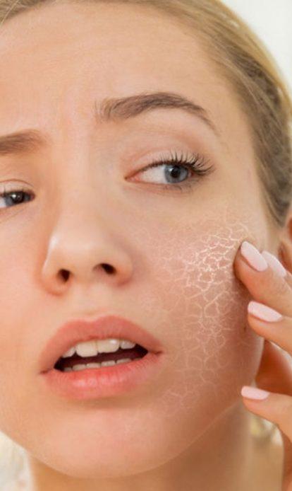 صورة علاج البشرة الجافة المقشرة , طرق علاج مشاكل الوجه