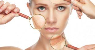 بالصور علاج البشرة الجافة المقشرة , طرق علاج مشاكل الوجه 6938 3 310x165