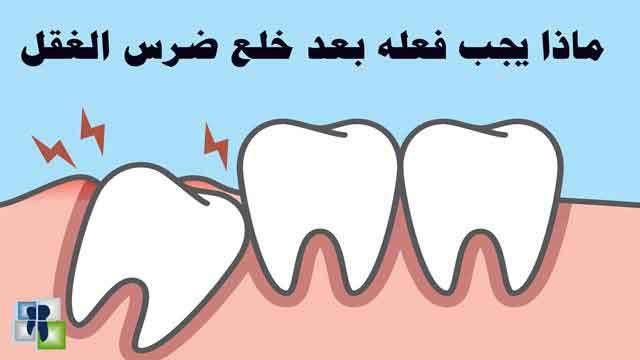 بالصور شكل ضرس العقل بعد الخلع , مشاكل خلع الاسنان 6996 1