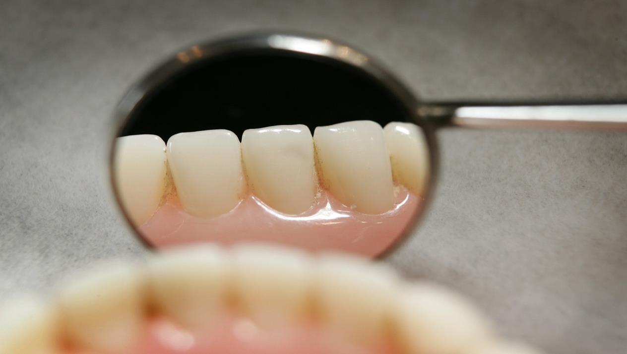 بالصور شكل ضرس العقل بعد الخلع , مشاكل خلع الاسنان 6996 5