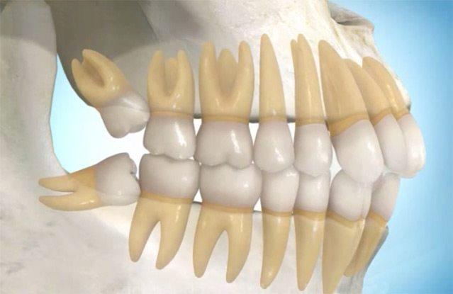بالصور شكل ضرس العقل بعد الخلع , مشاكل خلع الاسنان 6996 7