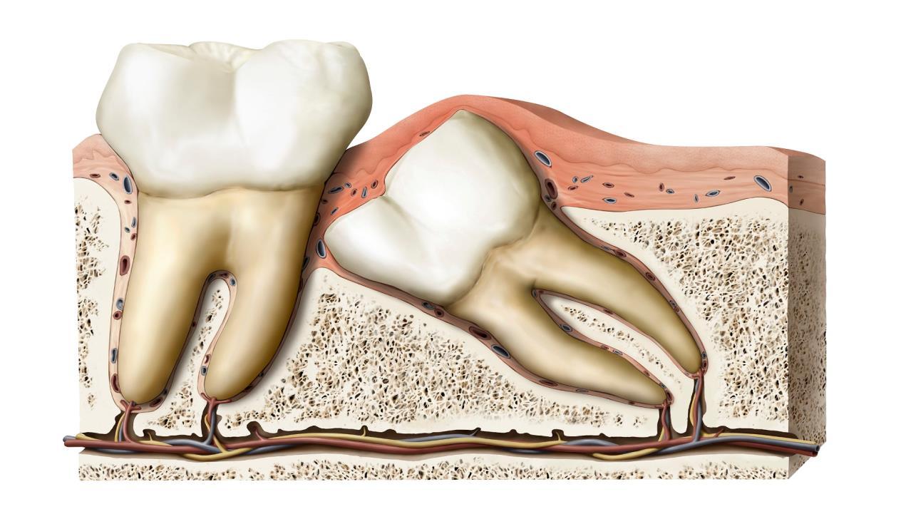 صورة شكل ضرس العقل بعد الخلع , مشاكل خلع الاسنان