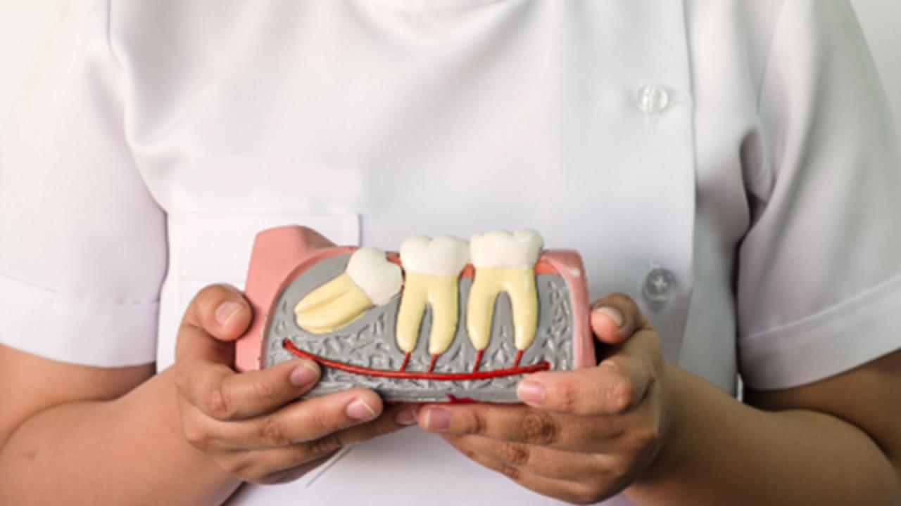 بالصور شكل ضرس العقل بعد الخلع , مشاكل خلع الاسنان 6996