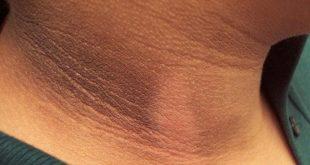 صورة علاج الكلف بعد الولادة , علاج اسمرار جسمك من اثار الحمل