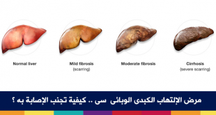 بالصور اعراض الكبد الوبائي , كيف تعرف ان الشخص مصاب بفيرس سي 7338 1 310x165