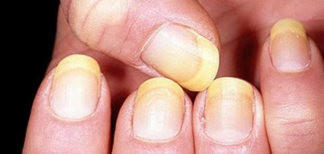 صورة اعراض الكبد الوبائي , كيف تعرف ان الشخص مصاب بفيرس سي