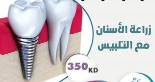 صور افضل مكان لزراعة الاسنان , استبدال السن التالف في مكان امن
