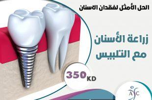 صورة افضل مكان لزراعة الاسنان , استبدال السن التالف في مكان امن