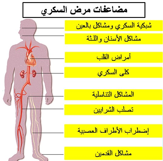 صور اضرار مرض السكر , مخاطر الاصابة بمرض السكر